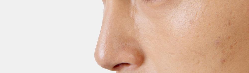 男性の鼻:横顔